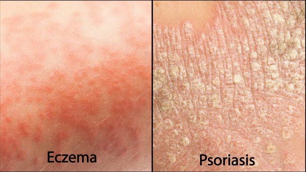 eczema-psoriasis